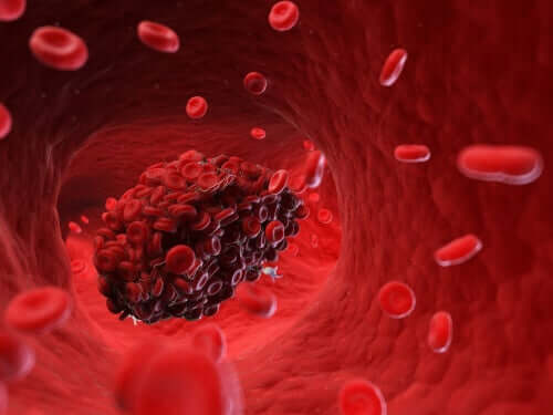 Blutgerinnsel: Risiken für den Hund